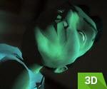 3D Akıl Hastanesinden Kaçış